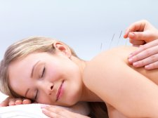 10 Tips for Choosing an Acupuncturist